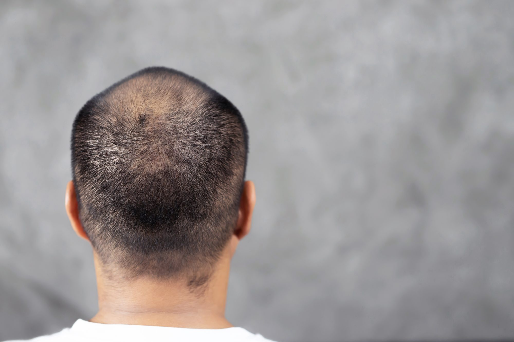FactCheck: are bald men at greater risk of severe coronavirus illness? - channel 4